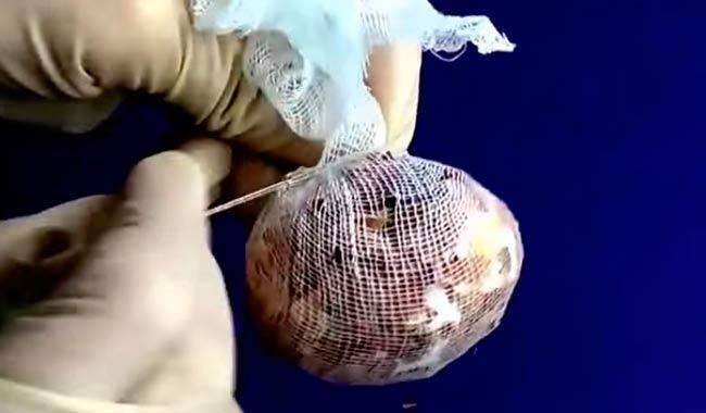 плотно марлю затягиваем вокруг яйца